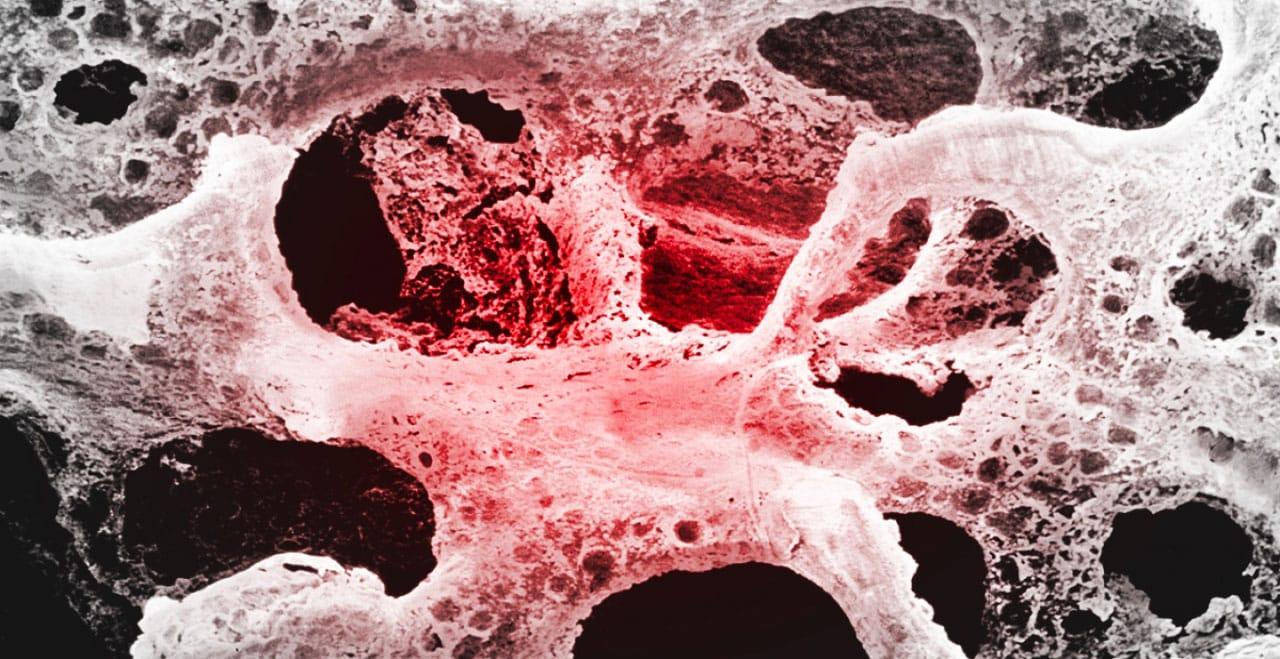 Amelmedical – Osteoporosi